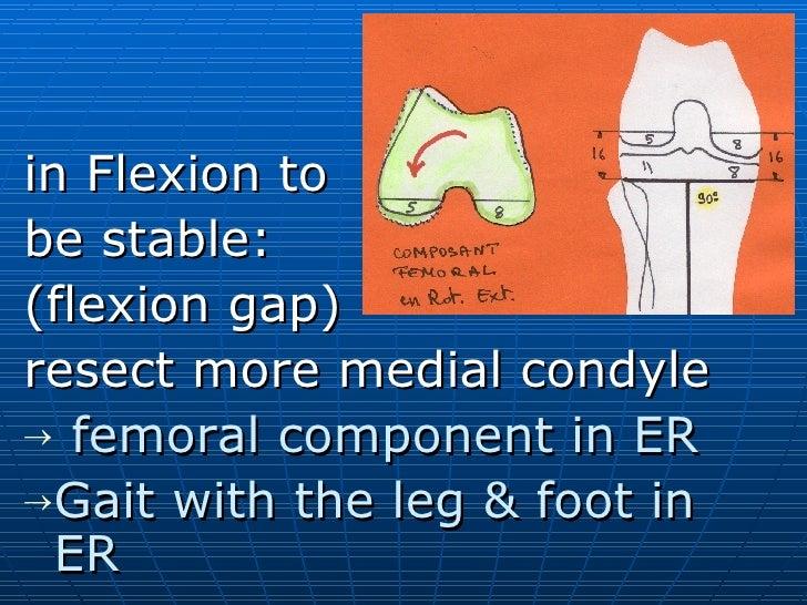 <ul><li>in Flexion to </li></ul><ul><li>be stable: </li></ul><ul><li>(flexion gap) </li></ul><ul><li>resect more medial co...