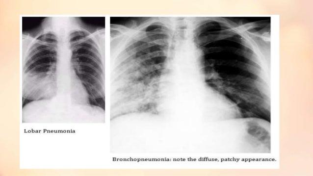Bronchopneumonia (1)