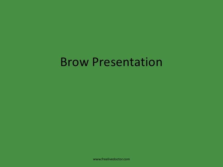 Brow Presentation<br />www.freelivedoctor.com<br />