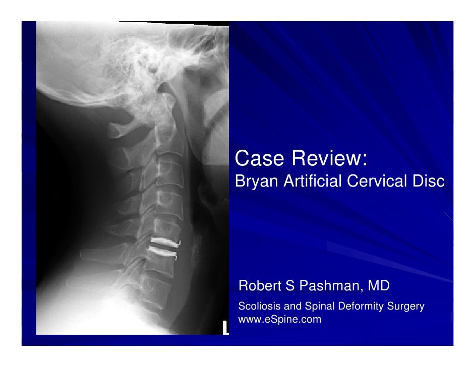 Case Review:Bryan Artificial Cervical DiscRobert S Pashman, MDScoliosis and Spinal Deformity Surgerywww.eSpine.com