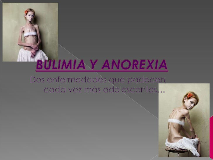 bulimia vs anorexia essays