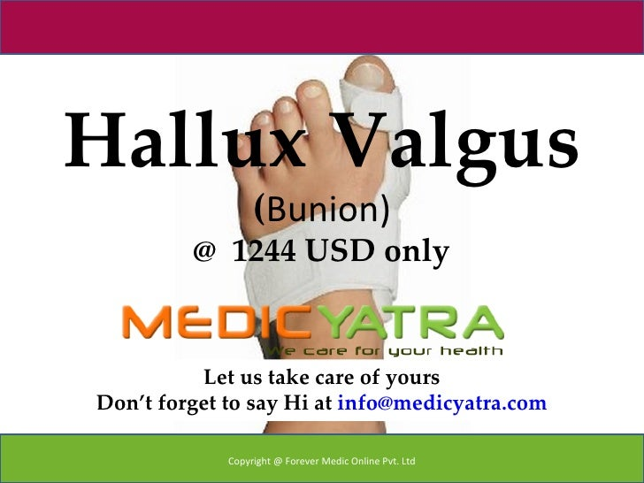 Hallux Valgus                  (Bunion)         @ 1244 USD only          Let us take care of yoursDon't forget to say Hi a...