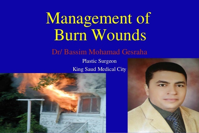Management of Burn Wounds Dr/ Bassim Mohamad Gesraha Plastic Surgeon King Saud Medical City