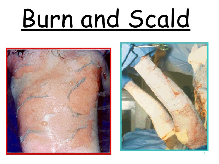 Burn and Scald