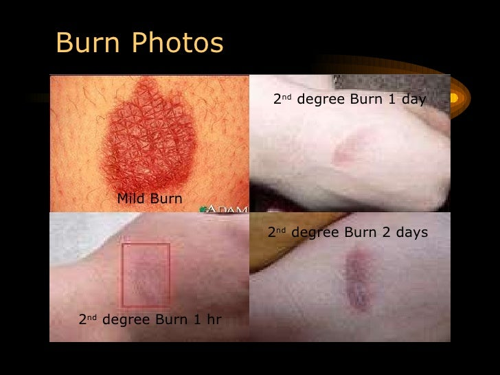 How do I Treat a Chemical Burn? (with pictures) - wiseGEEK