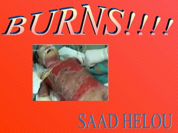 SAAD HELOU BURNS!!!!