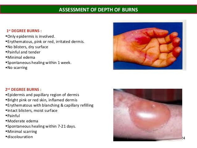 Burns: First aid - Mayo Clinic