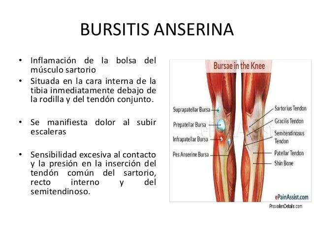 Bursitis - Dolor en la parte interior de la rodilla ...