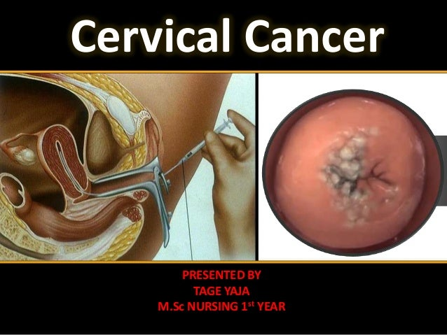 Cervical Cancer  PRESENTED BY TAGE YAJA M.Sc NURSING 1st YEAR