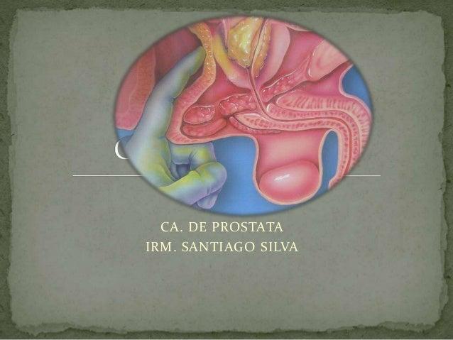 CA. DE PROSTATA IRM. SANTIAGO SILVA