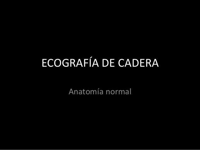 ECOGRAFÍA DE CADERA Anatomía normal