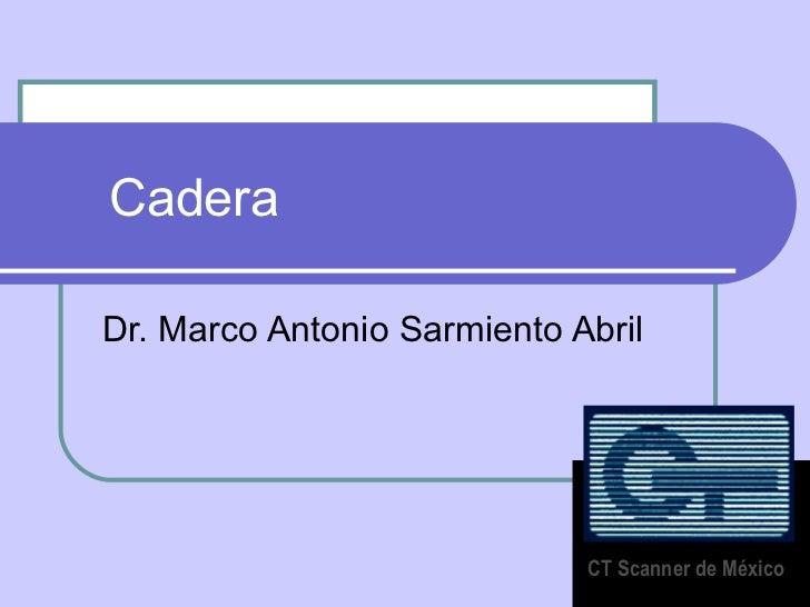 Cadera  Dr. Marco Antonio Sarmiento Abril CT Scanner de México