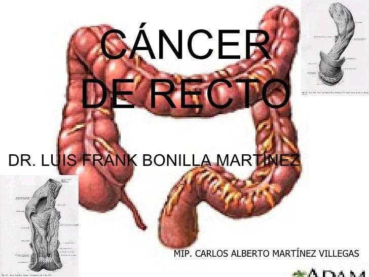 CÁNCER DE RECTO DR. LUIS FRANK BONILLA MARTÍNEZ MIP. CARLOS ALBERTO MARTÍNEZ VILLEGAS