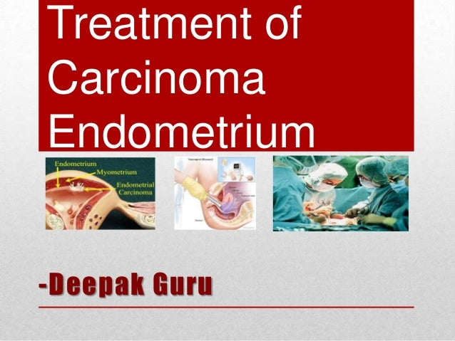 Treatment of Carcinoma Endometrium -Deepak Guru