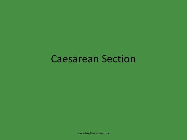 Caesarean Section<br />www.freelivedoctor.com<br />