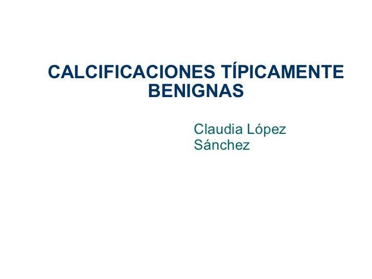 CALCIFICACIONES TÍPICAMENTE BENIGNAS Claudia López Sánchez