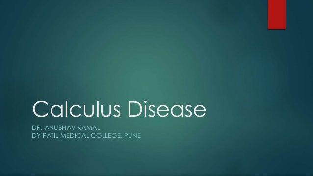 Calculus Disease DR. ANUBHAV KAMAL DY PATIL MEDICAL COLLEGE, PUNE