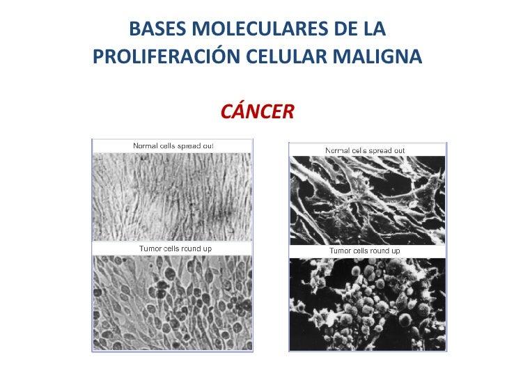 BASES MOLECULARES DE LA PROLIFERACIÓN CELULAR MALIGNA CÁNCER