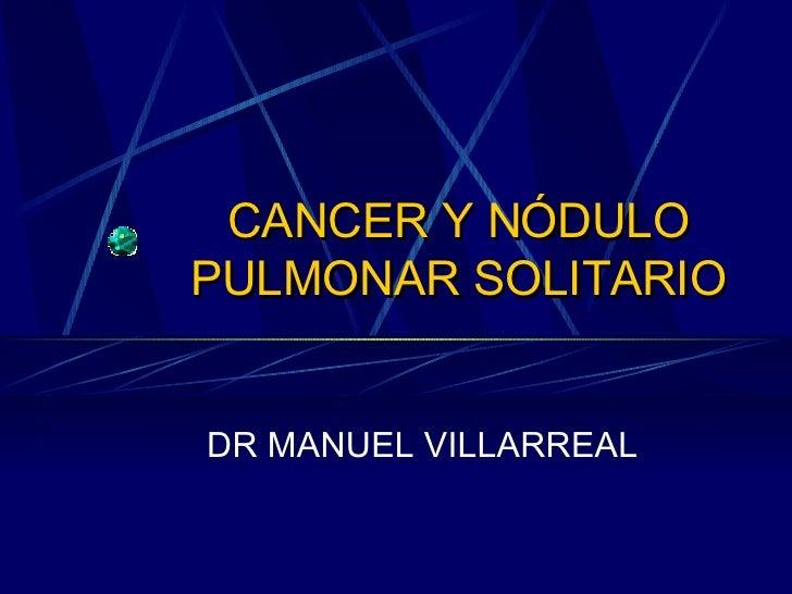 CANCER Y NÓDULO PULMONAR SOLITARIO DR MANUEL VILLARREAL