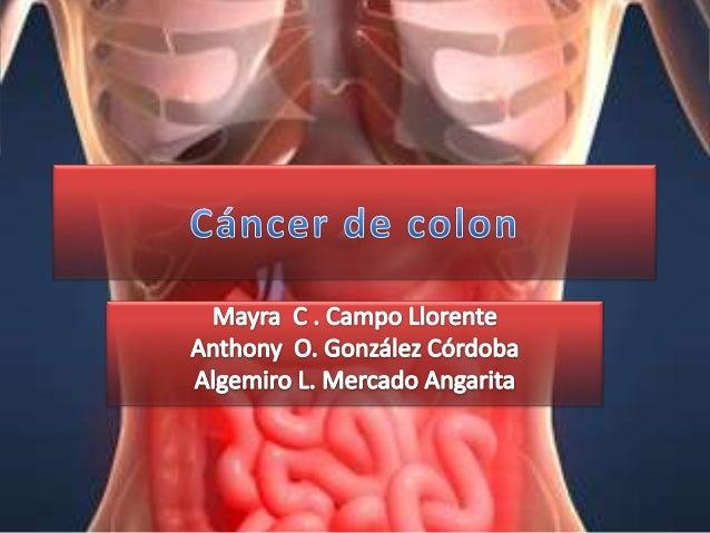 Cancer de colon corregido