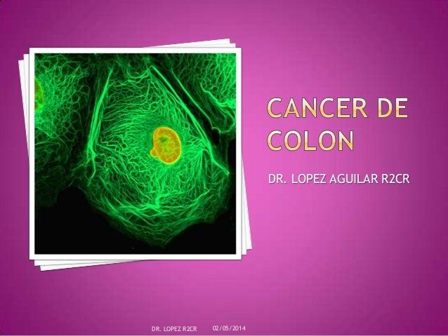 DR. LOPEZ AGUILAR R2CR 02/05/2014DR. LOPEZ R2CR