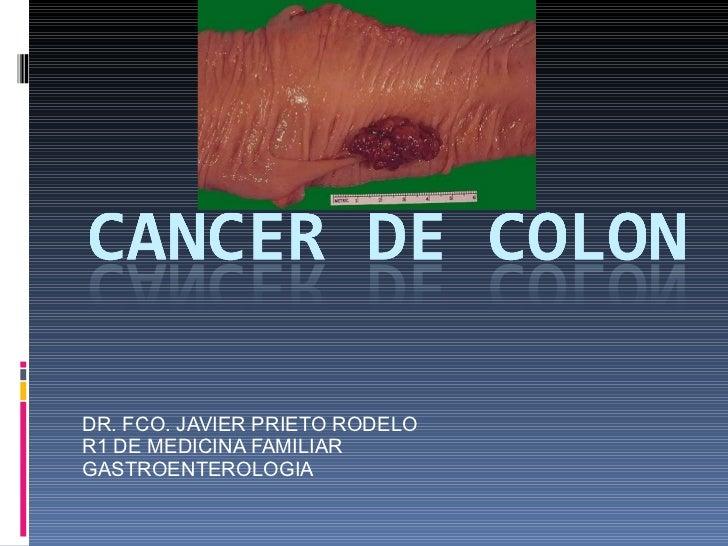 DR. FCO. JAVIER PRIETO RODELO R1 DE MEDICINA FAMILIAR GASTROENTEROLOGIA