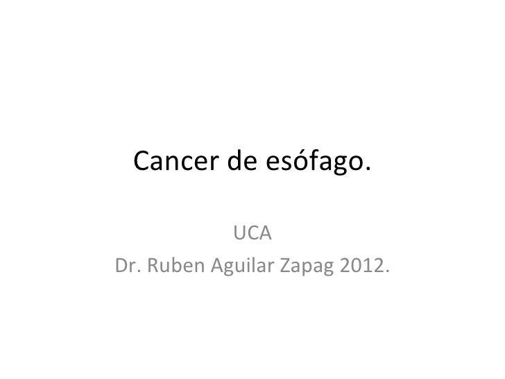 Cancer de esófago.            UCADr. Ruben Aguilar Zapag 2012.
