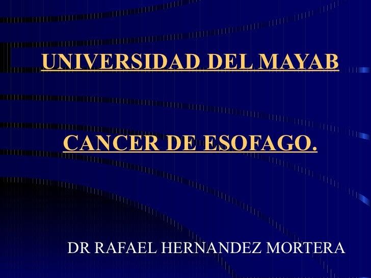 UNIVERSIDAD DEL MAYAB CANCER DE ESOFAGO. DR RAFAEL HERNANDEZ MORTERA