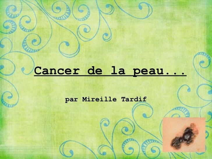 Cancer de la peau... par MireilleTardif