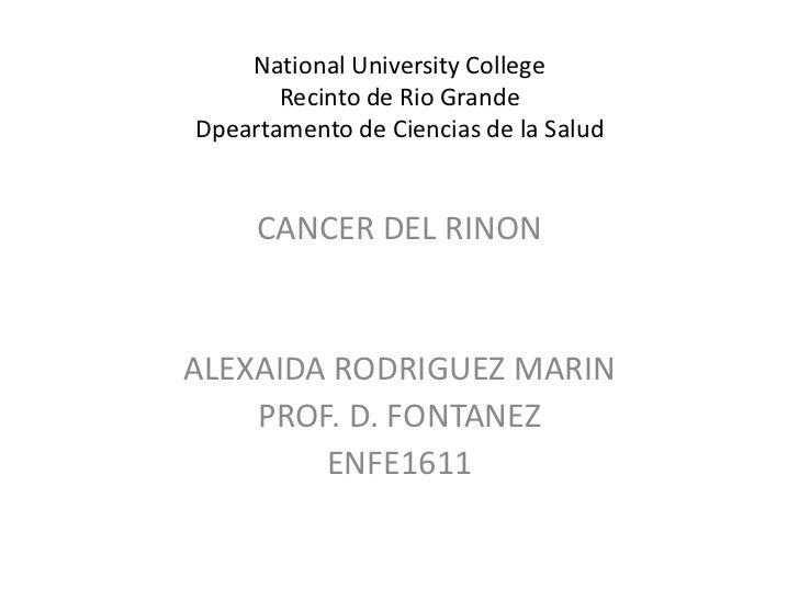NationalUniversityCollegeRecinto de Rio GrandeDpeartamento de Ciencias de la Salud<br />CANCER DEL RINON<br />ALEXAIDA ROD...