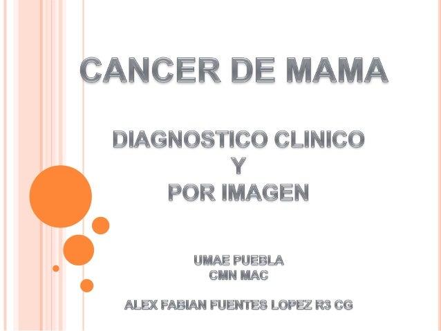 Cancer de mama imagenología
