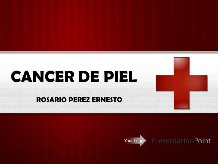 CANCER DE PIEL<br />ROSARIO PEREZ ERNESTO<br />