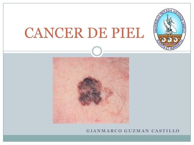 CANCER DE PIEL       GIANMARCO GUZMAN CASTILLO