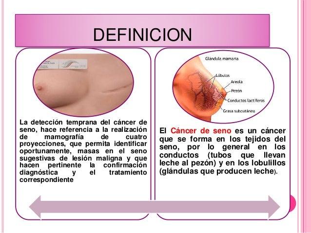 Cancer de seno for Definicion periodico mural