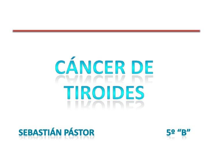 """CÁNCER DE TIROIDES<br />SEBASTIÁN PÁSTOR5º """"B""""<br />"""