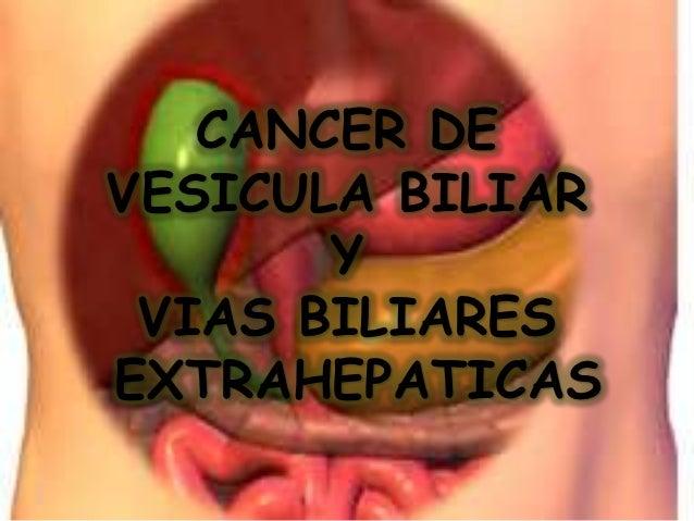 Cancer de vesicula y vias biliares