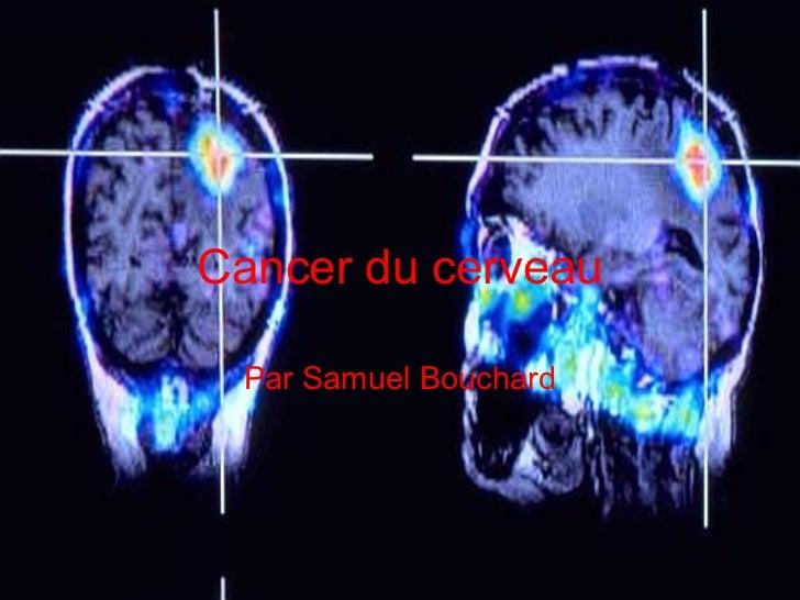 Cancer du cerveau Par Samuel Bouchard