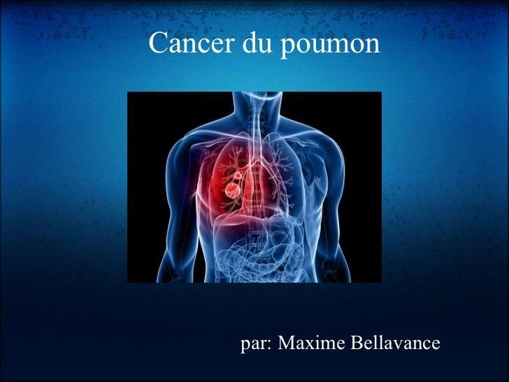 Cancer du poumon      par: Maxime Bellavance