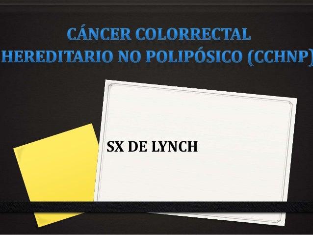 SX DE LYNCH