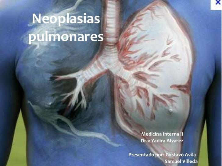 Neoplasiaspulmonares                  Medicina Interna II                  Dra: Yadira Alvarez             Presentado por:...