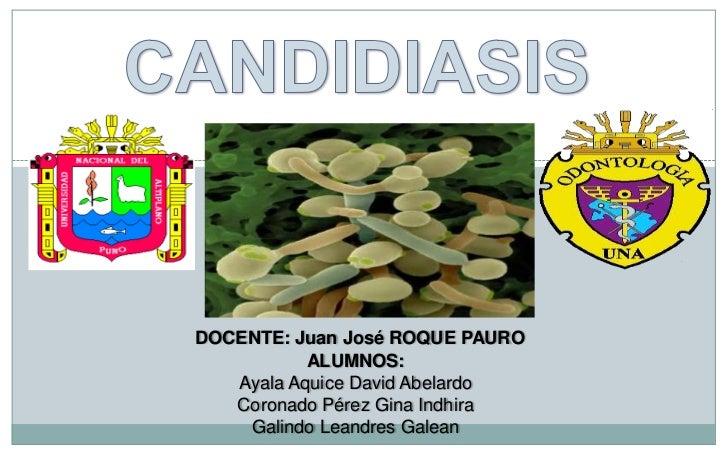 CANDIDIASIS<br />DOCENTE: Juan José ROQUE PAURO<br />ALUMNOS:<br />Ayala Aquice David Abelardo<br />Coronado Pérez Gina In...