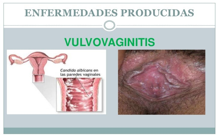Vulvovaginitis The Way To Deal...