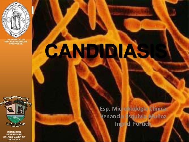 Esp. Microbiología Clínica. Venancio Esquivia Muñoz. Ingrid Fortich. CANDIDIASIS UNIVERSIDAD DE SAN BUENAVENTURA CARTAGENA...