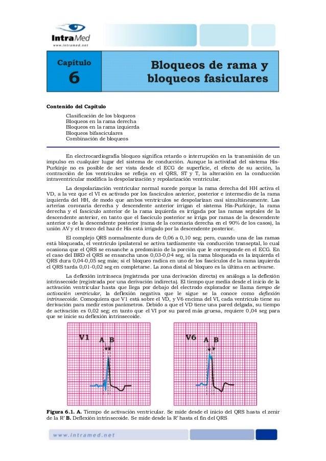 Contenido del Capítulo Clasificación de los bloqueos Bloqueos en la rama derecha Bloqueos en la rama izquierda Bloqueos bi...