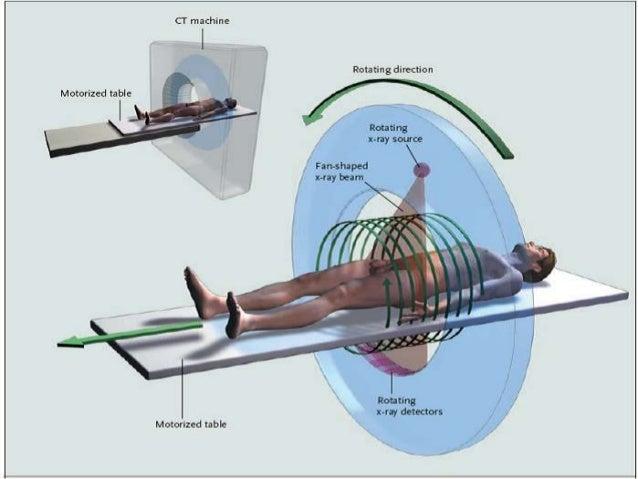 Resultado de imagen de tomografía computarizada tridimensional