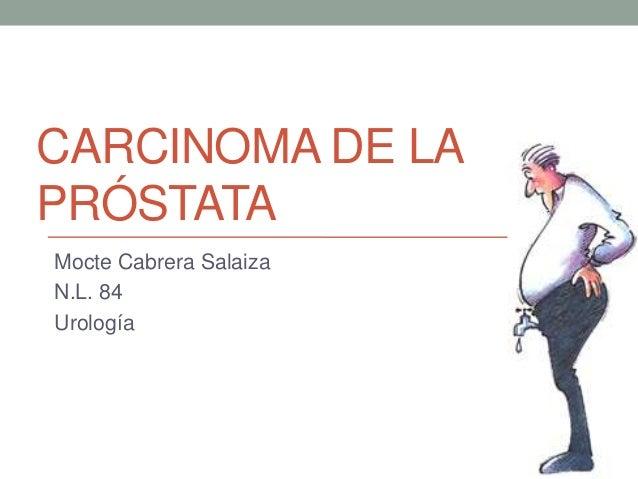 CARCINOMA DE LA PRÓSTATA Mocte Cabrera Salaiza N.L. 84 Urología