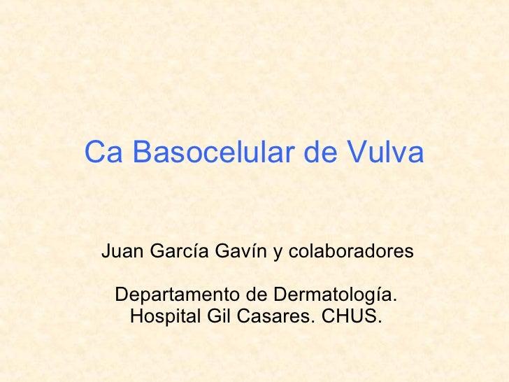 Ca Basocelular de Vulva Departamento de Dermatología. Hospital Gil Casares. CHUS. Juan García Gavín y colaboradores