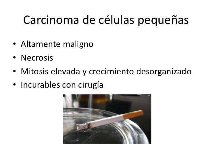 Carcinoma de células pequeñas•   Altamente maligno•   Necrosis•   Mitosis elevada y crecimiento desorganizado•   Incurable...