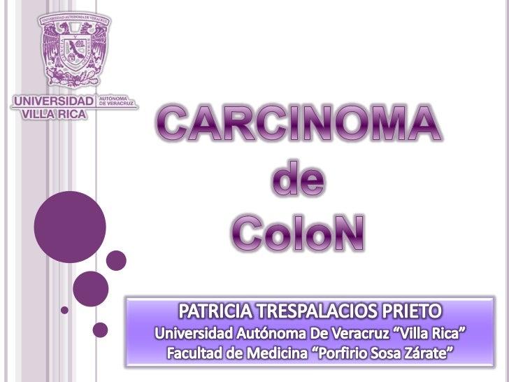 """CARCINOMAdeColoN<br />PATRICIA TRESPALACIOS PRIETO<br />Universidad Autónoma De Veracruz """"Villa Rica""""<br />Facultad de Med..."""