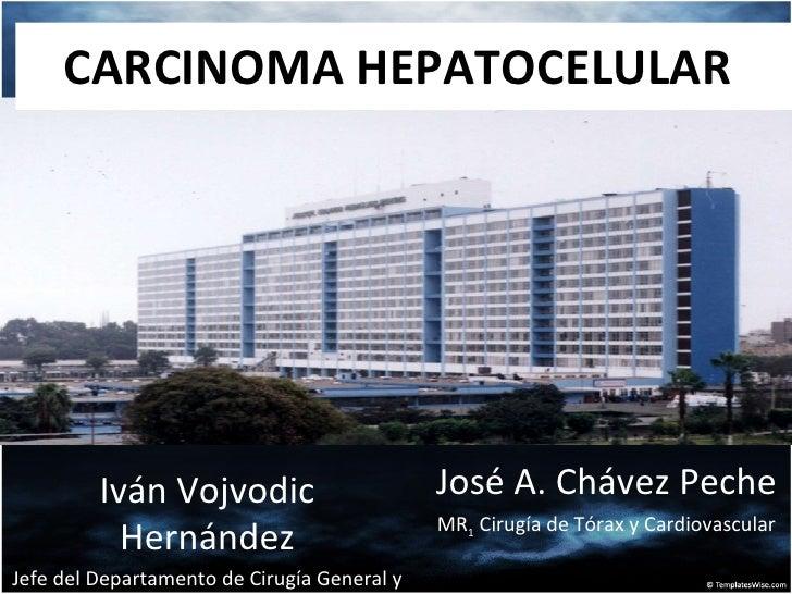 CARCINOMA HEPATOCELULAR  José A. Chávez Peche MR 1  Cirugía de Tórax y Cardiovascular Iván Vojvodic Hernández Jefe del Dep...